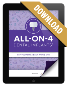 Preview of our All-on-4 Dental Implants Free Download