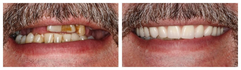 Actual before and after photos of All-on-4 dental implants are cost-effective and durable.