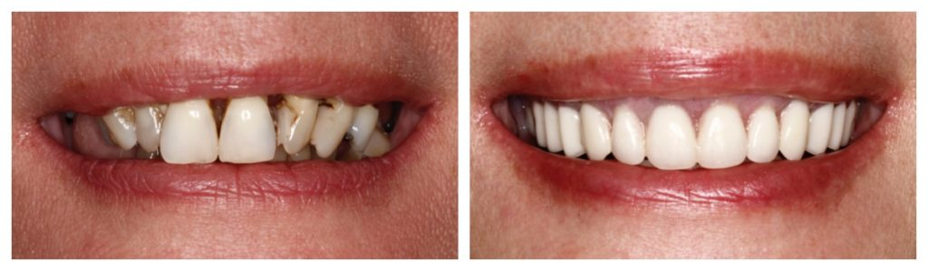 Actual before and after photo of an All-on-4 dental implant procedure.