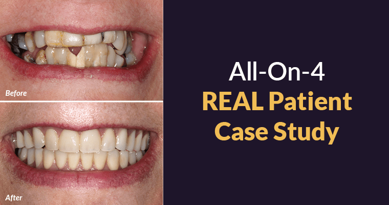 All-on-4 REAL Patient Case Study Before and After Results