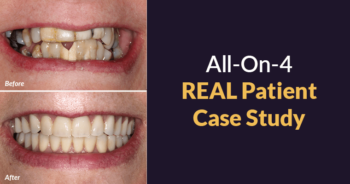 All-on-4® Before and After Case Study [and How to Get Results like These!]