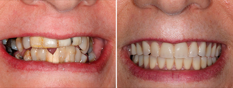Before and after case using All-on-4 dental implants