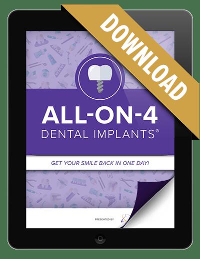 Representation of our dental implants eBook