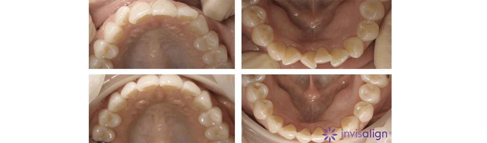 Before and after case of an alignment using Invisalign