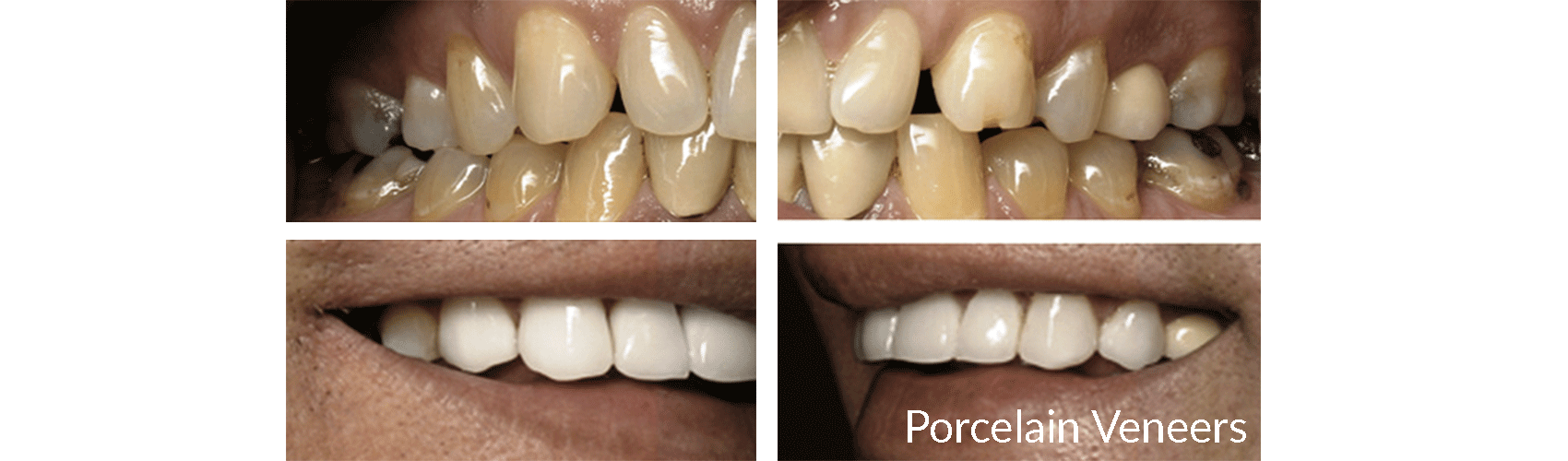Before and after case of a mouth using Porcelain Veneers