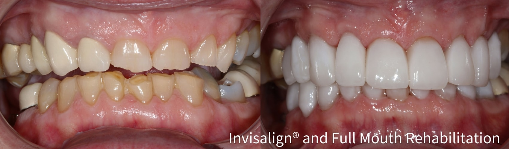 Before and after case utilizing Invisalign and full mouth rehabilitation treatment