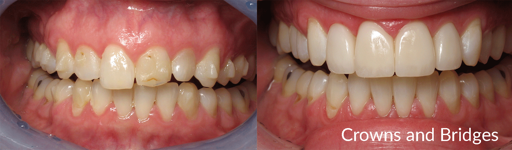 Before and after case of a crowns and bridges treatment