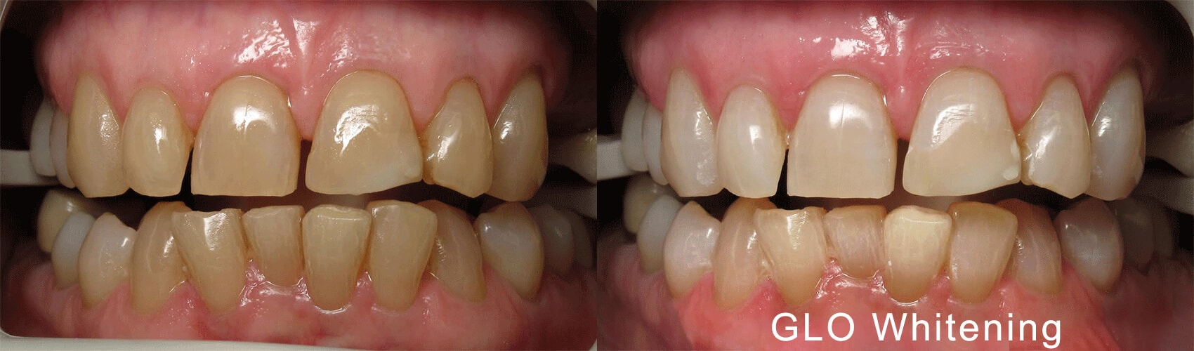 Before and after case using GLO Teeth Whitening
