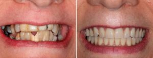 Real patient smile before and after all-on-four dental implants